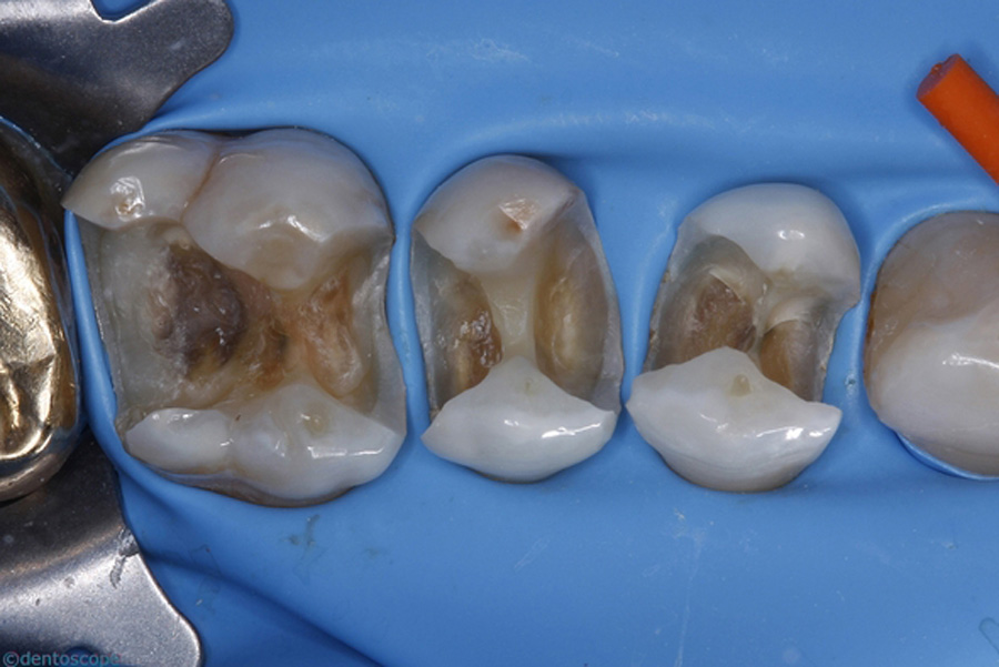 Le d roulement du rendez vous d une restauration en - Grille des salaires des assistantes dentaires ...